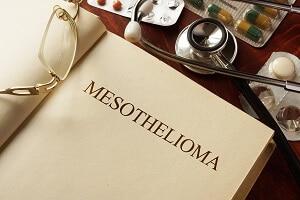 Mesothelioma Defined
