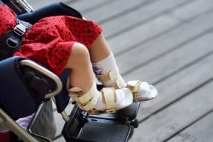 Cerebral Palsy Birth Injury Lawyer